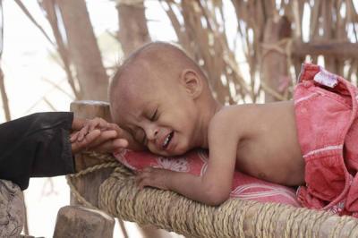 15 ألف طفل يمني يعانون سوء تغذية حاد