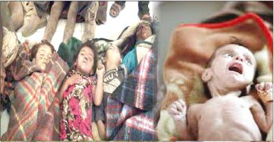 عشرة آلاف قتلوا وشوهوا.. أطفال اليمن أول ضحايا العدوان